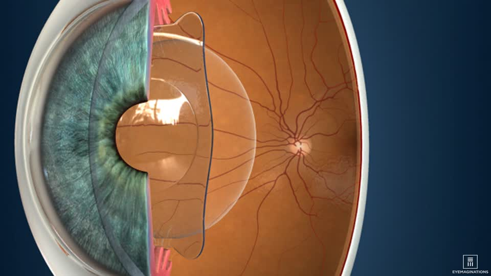 Lenses implanted