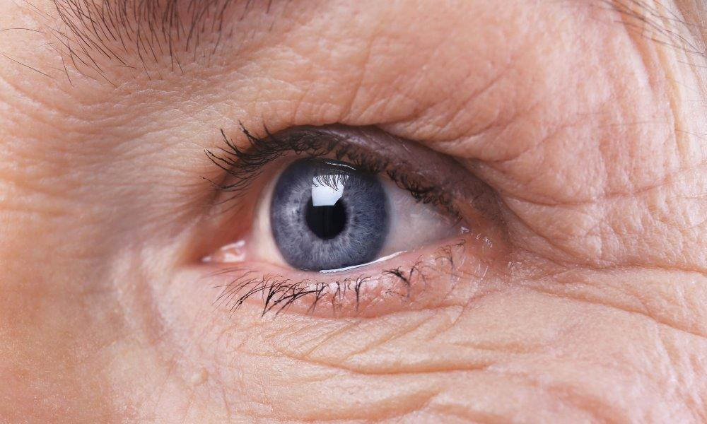 after Cataract operation
