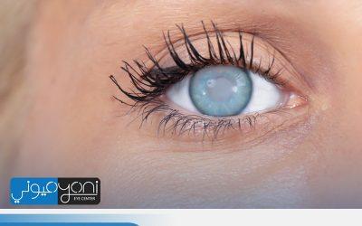 المياه البيضاء: اعراض وعلاج المياه البيضاء في العين